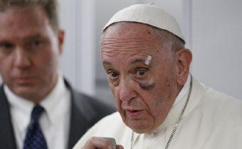"""Komentář k """"Prohlášení pravdy…""""  od kard. R. Burkeho, biskupa A. Schneidera…"""